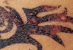 Henna - tetoválás gyulladt állapotban