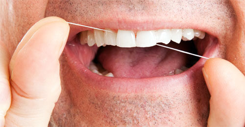 fogyás fehér nyelv