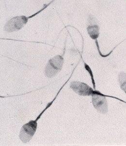 Mit tudsz a spermáról?